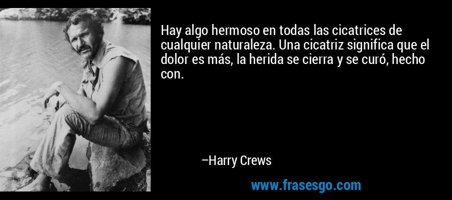 Hay algo hermoso en todas las cicatrices de cualquier naturaleza. Una cicatriz significa que el dolor es más, la herida se cierra y se curó, hecho con. – Harry Crews